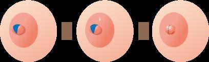乳頭縮小術  授乳機能を残さない術式(乳頭を低く小さくする)