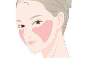 頬の脱毛の範囲