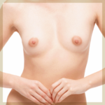 モントゴメリー腺(乳輪のぶつぶつ)除去