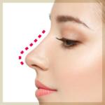 鼻のヒアルロン酸注射