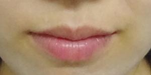 唇のヒアルロン酸注射症例写真01BEFORE