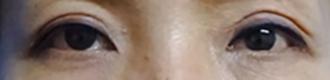 目の上のたるみ取り-症例写真01_after