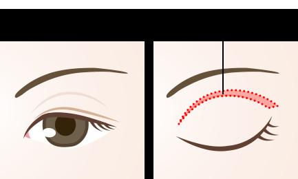 上瞼のたるみ取りイメージ図_01