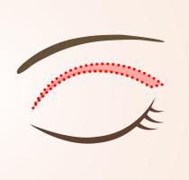 上瞼のたるみ取り施術の流れ_02