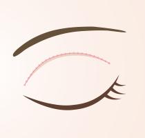 上瞼のたるみ取り施術の流れ_03