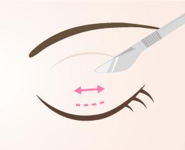 二重整形の切開法は全切開と部分切開の2種類があります。