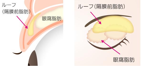上まぶたの隔膜前脂肪
