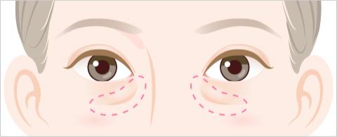 目の下のふくらみ・たるみのタイプ ハの字型にふくらみ・たるみと陰が目立つタイプのイラスト