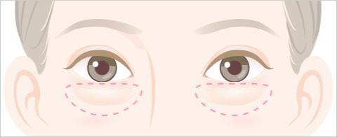 目の下のふくらみのタイプ ぼんやりしたふくらみが全体にあるタイプのイラスト