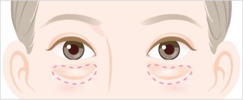 目の下のふくらみのタイプ ふくらみの下の凹みが目立つタイプのイラスト