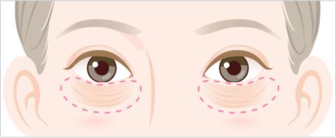 目の下のふくらみのタイプ 皮膚のシワやたるみが目立つタイプのイラスト