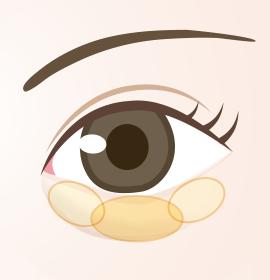 目の下の3区画の脂肪