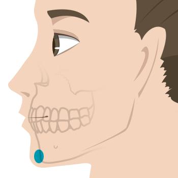 顎のヒアルロン酸注入部位