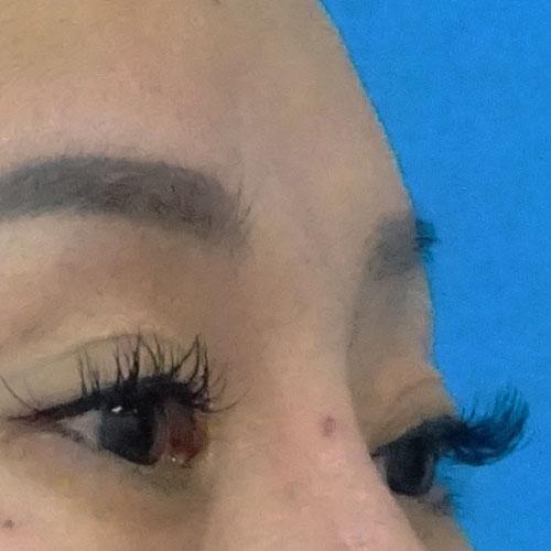 眉間のシワヒアルロン酸_症例写真01-before