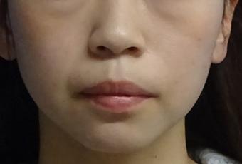 TCB式小顔美肌再生-症例写真-ビフォーアフター
