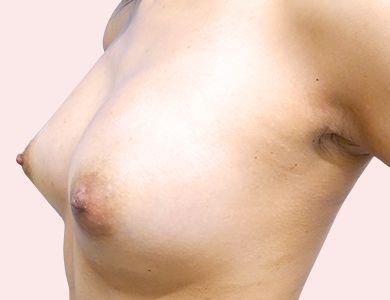 TCB式ヒアルロン酸豊胸-症例写真-ビフォーアフター