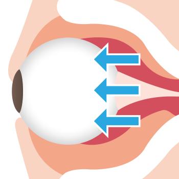 バセドウ病の眼球突出
