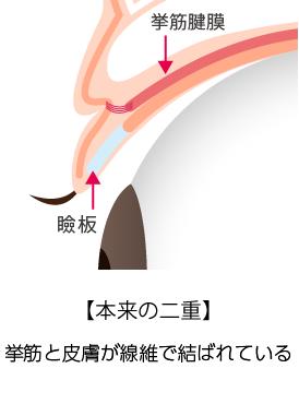 埋没法「挙筋法と瞼板法の違い」_本来の二重