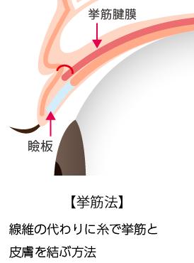 埋没法「挙筋法と瞼板法の違い」_挙筋法