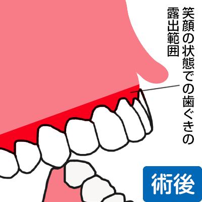 笑った状態でも歯茎が見える範囲が狭まった