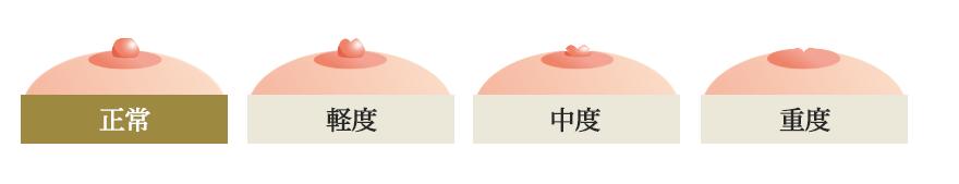 あなたはどのパターン?陥没乳頭は軽度・中度・重度の3パターンあります