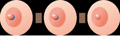 乳頭縮小術 乳管を傷つけないようにする術式(乳頭を低くする)