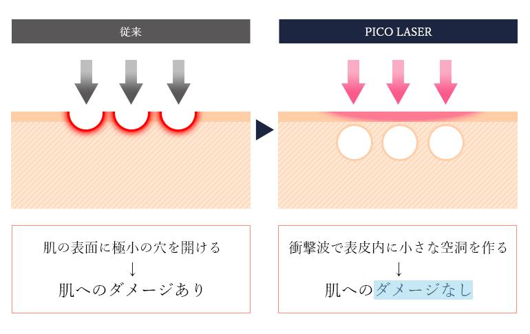ピコフラクショナルは高密度のレーザーを照射・衝撃波によって表皮の内側に微小な空洞を作り、その刺激によってコラーゲン生成を促します。