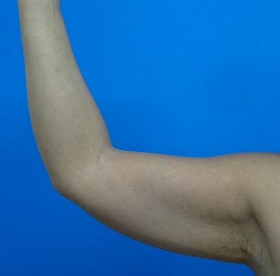 お腹 脂肪吸引-症例写真-ビフォーアフター