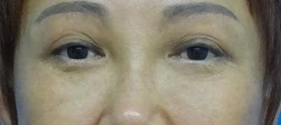 目の上のたるみ取り(上眼瞼除皺術)-症例写真-ビフォーアフター
