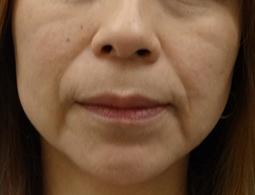 あごのヒアルロン酸注射-症例写真-Before