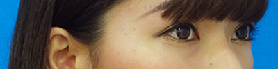 目の上のたるみ取り(上眼瞼除皺術)-症例写真