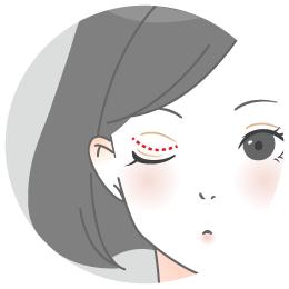 二重のラインに沿った切開ラインで 余分な皮膚を切り取る方法
