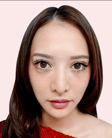 小顔美肌再生症例写真06AFTER