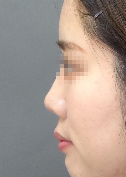 鼻先尖鋭術症例写真05before