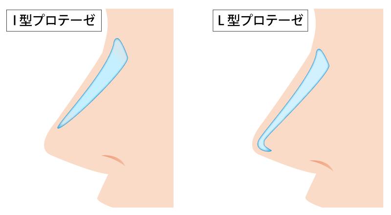 L型は鼻筋を高くし、鼻先をシュッとさせることもできます。