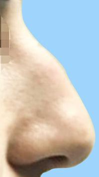 鷲鼻のケースです。鼻筋の中央にでっぱりがあります。