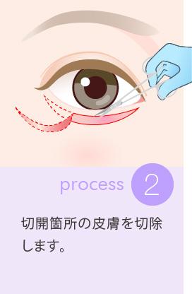 2:切開箇所の皮膚を切除します
