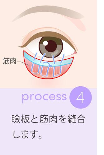 4:瞼板と筋肉を縫合します