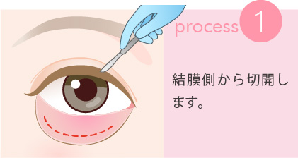 1:結膜側から切開します