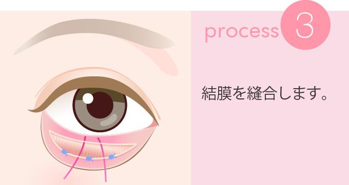 3:結膜を縫合します