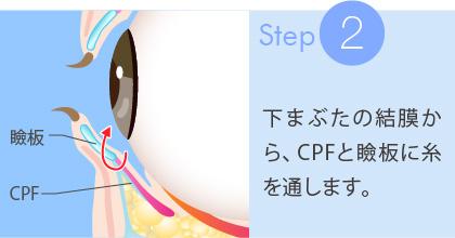 2:下まぶたの結膜から、CPFと瞼板に糸を通します
