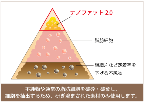 脂肪注入に用いるナノファット2.0