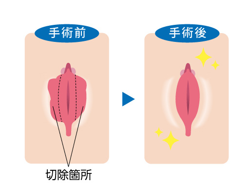 小陰唇縮小手術をすることで綺麗にバランスよく整えることができます