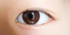 目頭切開をしないと末広がりの二重になり、平行幅の二重になりません