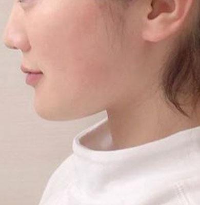 azugolf様_after