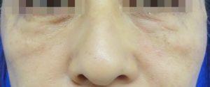 あごのヒアルロン酸注射-症例写真-After