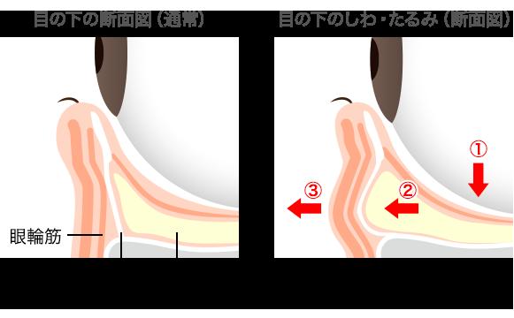 目の下のふくらみの原因は眼窩脂肪が押し出されることによる