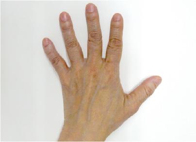 ハンドベイン治療-症例写真-ビフォーアフター