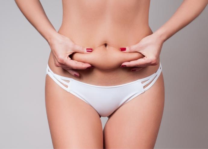 脂肪吸引のメリットとデメリット