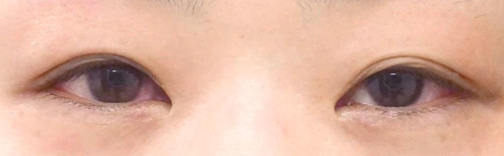 目の下のヒアルロン酸注射-症例写真-ビフォーアフター